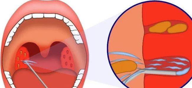Лечение гноя в горле