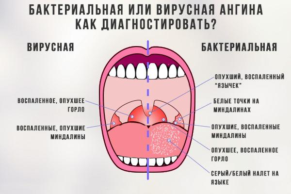 Бактериальная и вирусная