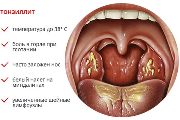 Форма тонзиллита