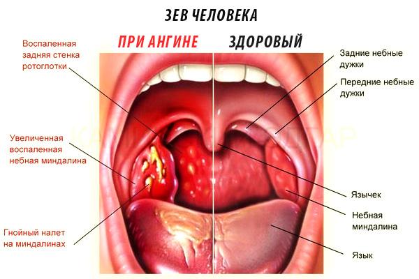 Возникновение инфекции